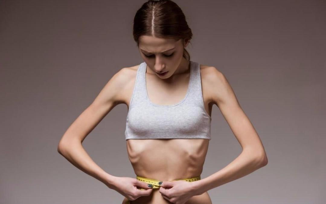 Saiba mais sobre a Anorexia