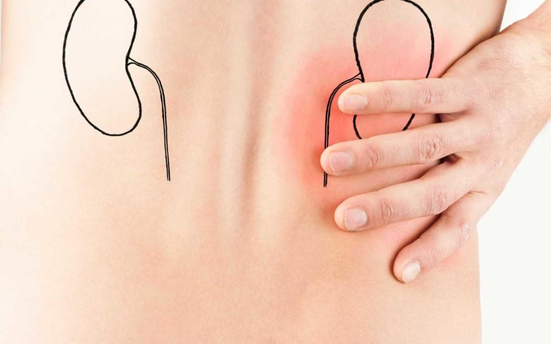 Pedra nos rins: Como prevenir e se livrar desse mal
